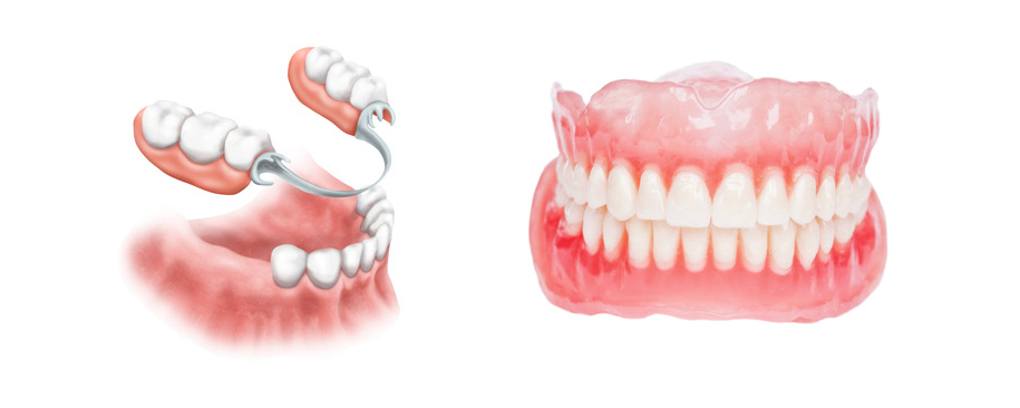DenturesPartial