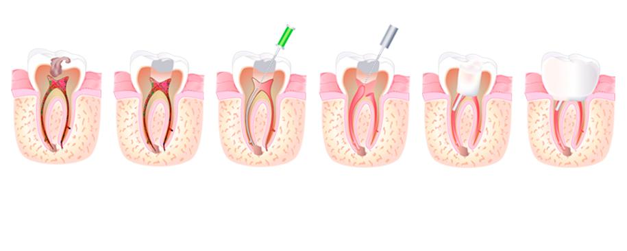 endodoncija postupak